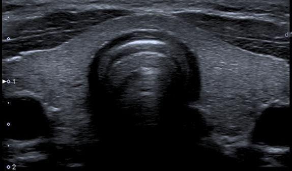 Zdjęcie prawidłowej tarczycy w usg